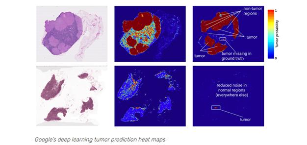 Machine Learning in Health Malignancy Ratecare